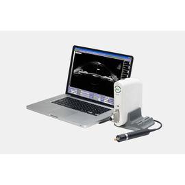 Suoer SW-3200 Ультразвуковой сканер с UBM-датчиком — фото 1