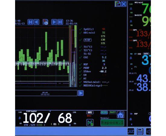 Тритон-ЭлектроникС МПР6-03 Комплектация А5.18 Монитор анестезиологический / операционный — фото 3