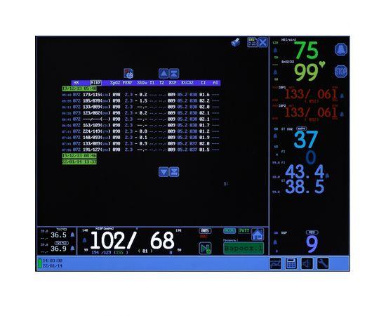 Тритон-ЭлектроникС МПР6-03 Комплектация НД2.18 Монитор для наркозно-дыхательных аппаратов — фото 3