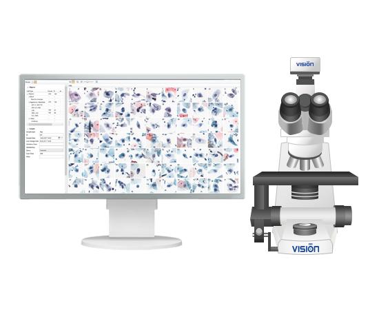 Vision Cyto® Pap Assist Автоматическая система анализа цервикального мазка — фото 1