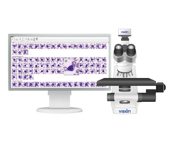Vision Hema® 4Pro гематологический сканер-анализатор — фото 1