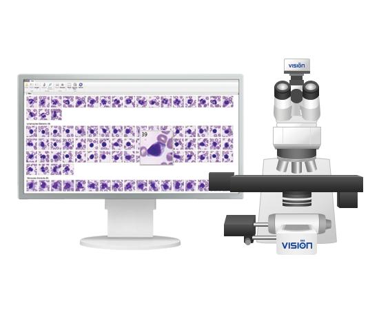 Vision Hema® 8Pro гематологический сканер-анализатор — фото 1