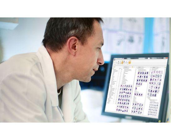 Vision Hema® Workflow полное решение для общего анализа крови — фото 1