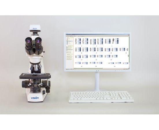 Vision Karyo® Цифровая система для хромосомного анализа (кариотипирование) — фото 1