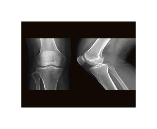 GE Healthcare Brivo XR575 Рентген-аппарат цифровой — фото 2