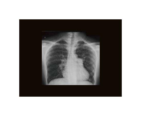 GE Healthcare Brivo XR575 Рентген-аппарат цифровой — фото 3