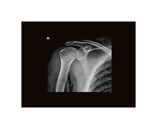 GE Healthcare Brivo XR575 Рентген-аппарат цифровой — фото 4