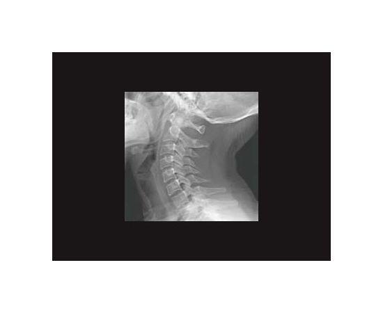 GE Healthcare Brivo XR575 Рентген-аппарат цифровой — фото 5