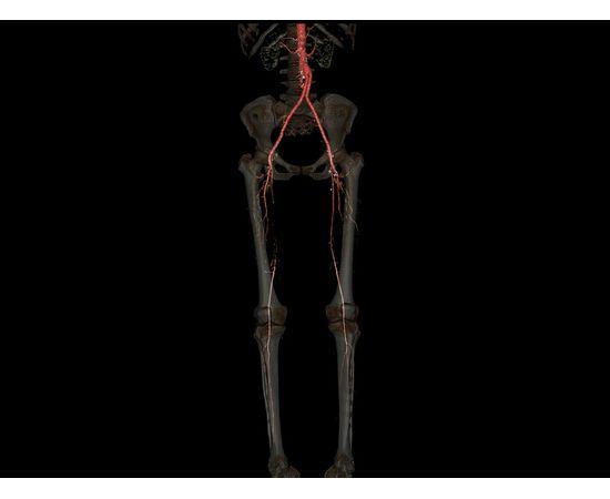GE Healthcare Optima CT520 Компьютерный томограф — фото 12