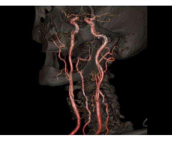 GE Healthcare Optima CT520 Компьютерный томограф — фото 13
