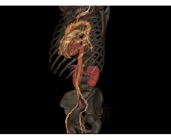 GE Healthcare Optima CT520 Компьютерный томограф — фото 14