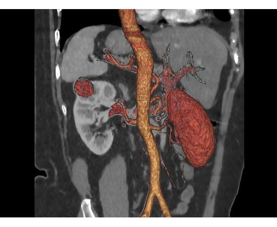 GE Healthcare Optima CT520 Компьютерный томограф — фото 7