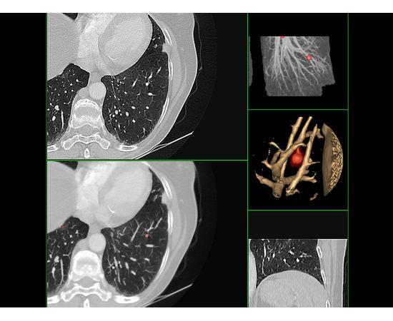 GE Healthcare Optima CT520 Компьютерный томограф — фото 9