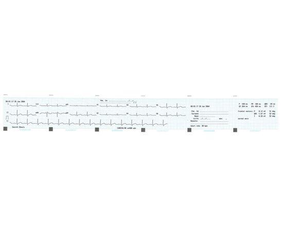 Cardioline ar600view 3-канальный электрокардиограф — фото 2